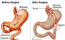 4 OPERATIONSMETODER (SoReg 38 kliniker) Gastric bypass (GBP) Vertical banded gastroplasty (VBG) Gastric banding (GB) Biliopancreatic diversion med Duodenal sw itch BPD Biliopancreatic diversion enl