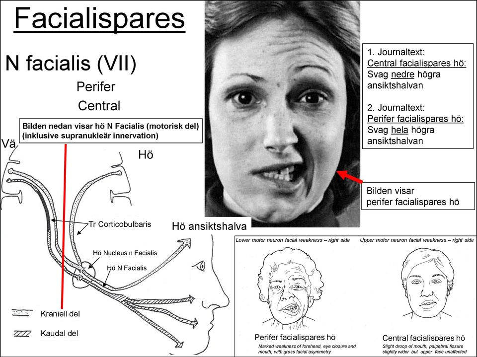 Journaltext: Perifer facialispares hö: Svag hela högra ansiktshalvan Tr Corticobulbaris Hö Nucleus n Facialis Hö N Facialis Hö Hö ansiktshalva Lower motor neuron facial weakness right side