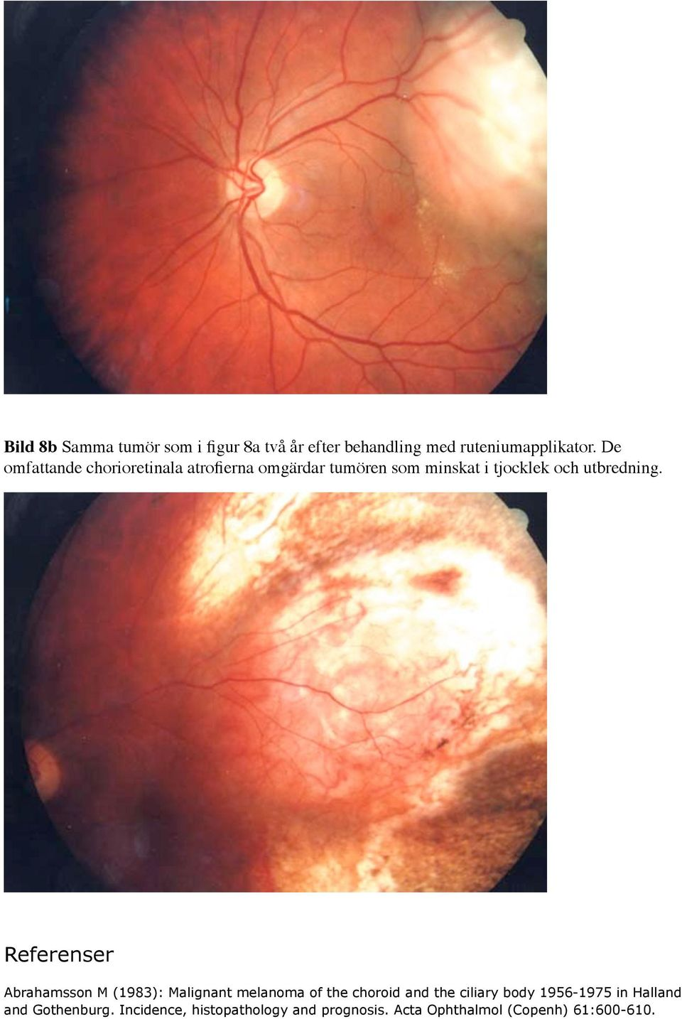 Referenser Abrahamsson M (1983): Malignant melanoma of the choroid and the ciliary body