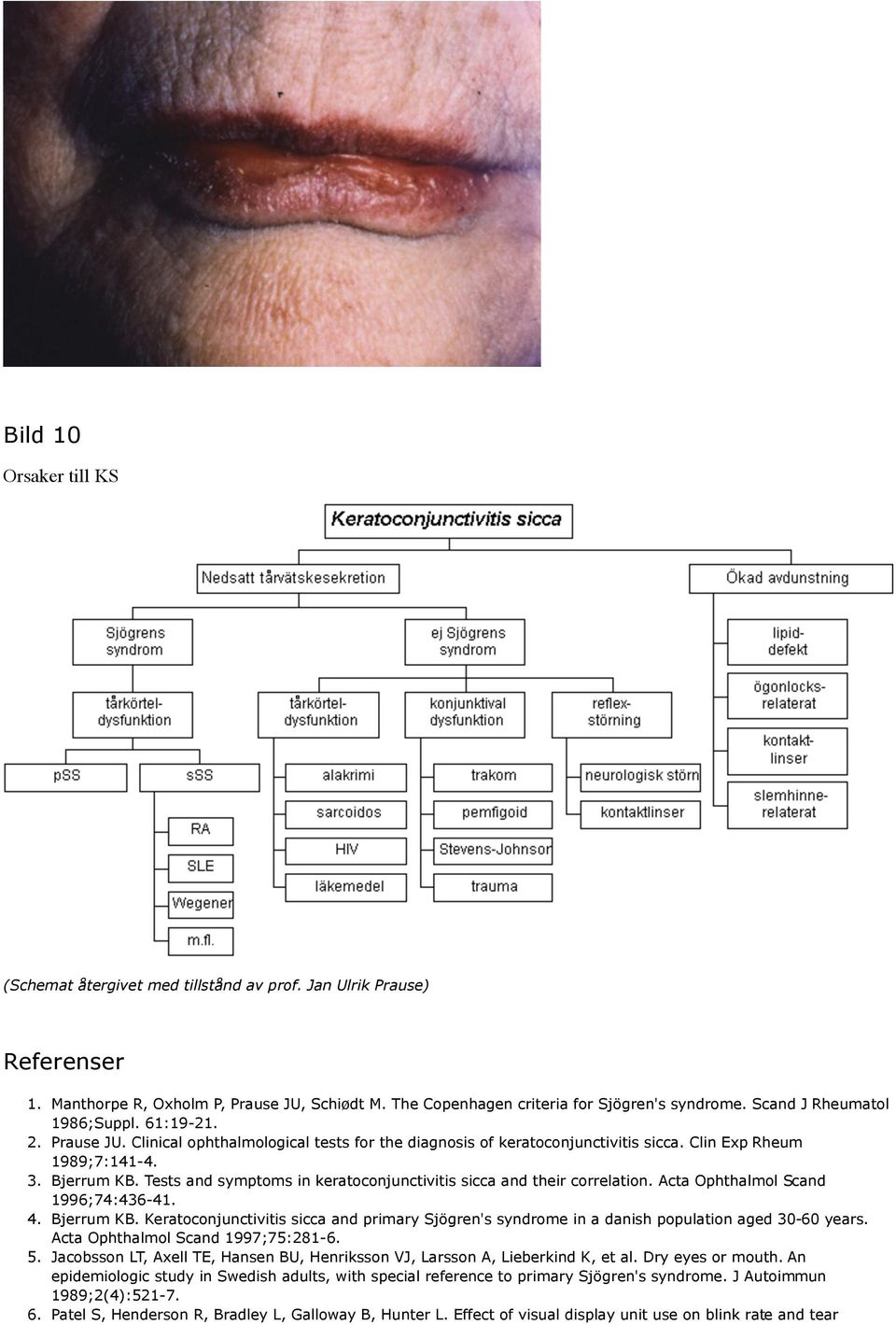 Tests and symptoms in keratoconjunctivitis sicca and their correlation. Acta Ophthalmol Scand 1996;74:436-41. 4. Bjerrum KB.