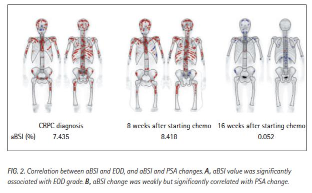 absi som biomarkör för effekt och prognos vid kemoterapi Objective: To value of automated BSI to indicate chemotherapy response and to predict prognosis in patients with CRPC with bone metastasis