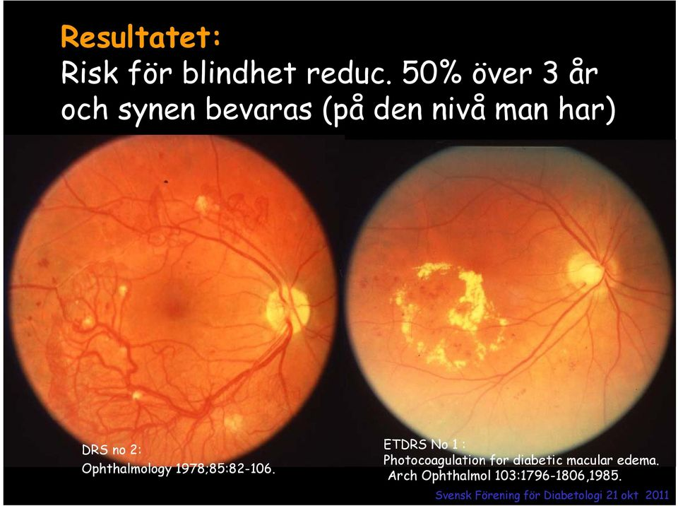 DRS no 2: Ophthalmology 1978;85:82-106.