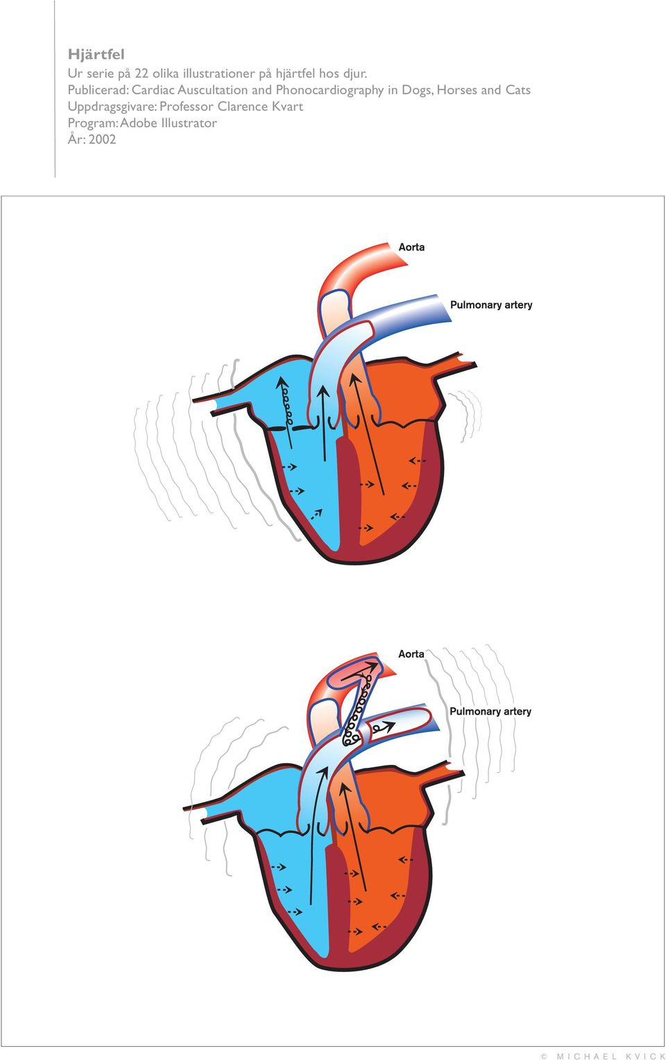 Publicerad: Cardiac Auscultation and Phonocardiography
