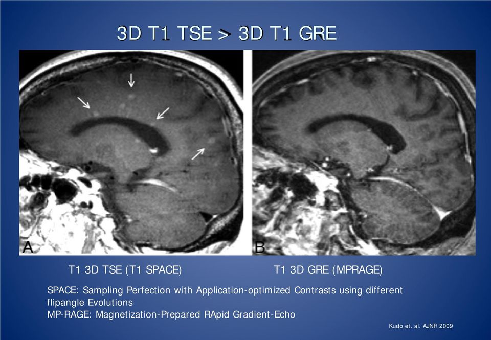 Application-optimized Contrasts using different flipangle