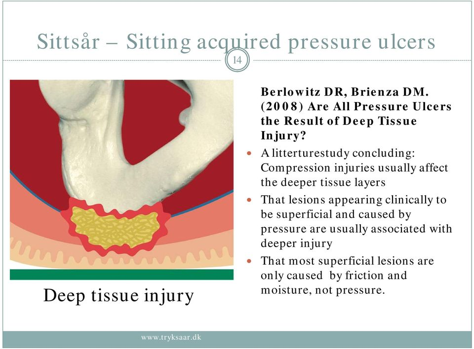 A litterturestudy concluding: Compression injuries usually affect the deeper tissue layers That lesions